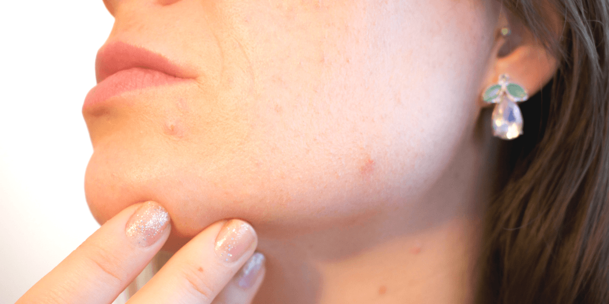 Middle-aged woman showing acne on chin