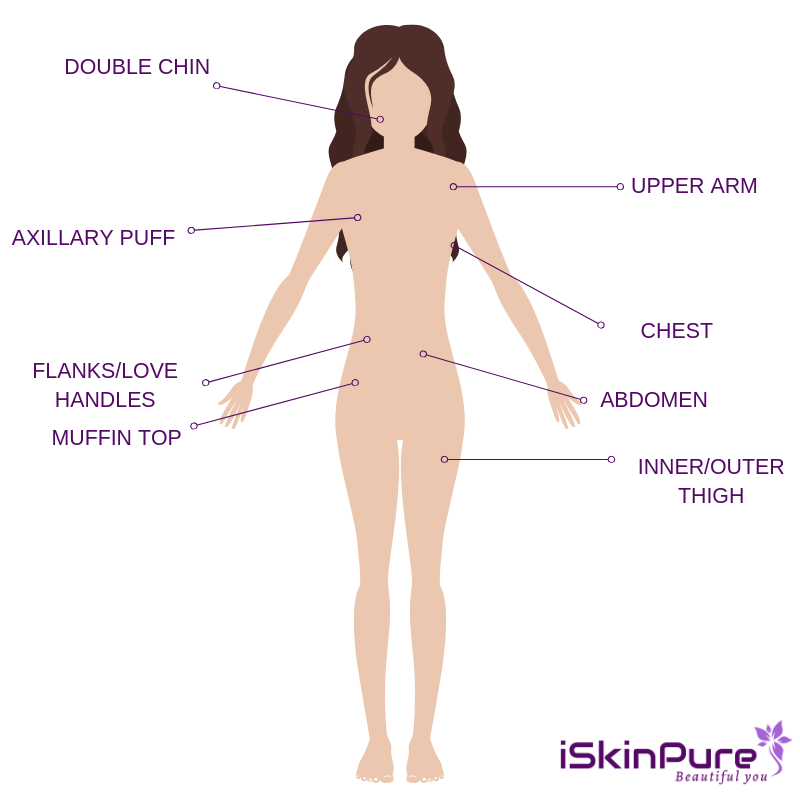 Coolsculpting Target Areas diagram
