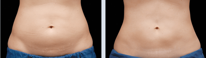 Before/after belly coolsculpting. Coolsculpting result