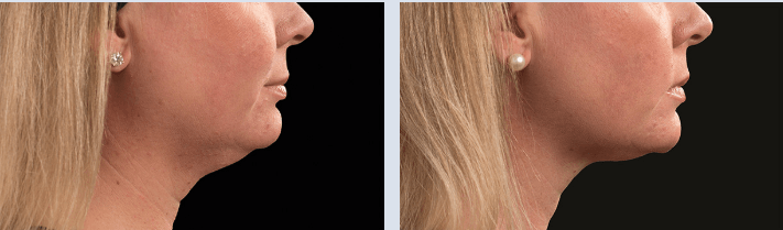 Woman before and after chin coolsculpting