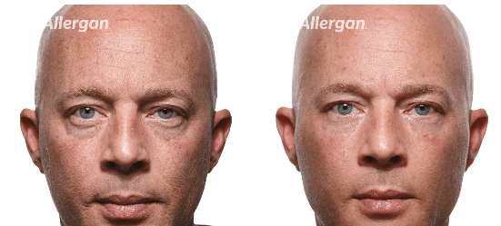 Man face before and after botox