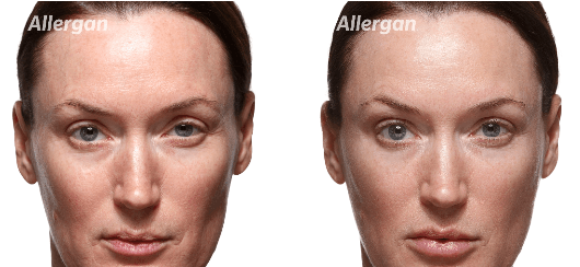 Woman face before and after botox