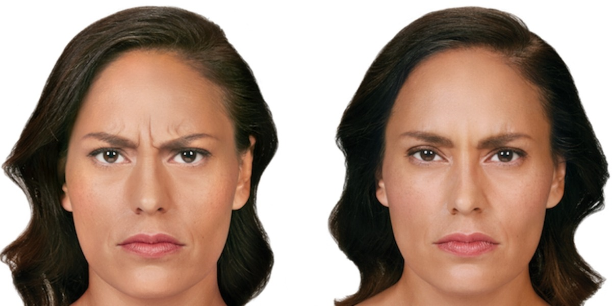 Woman face before and after neuromodulator injection