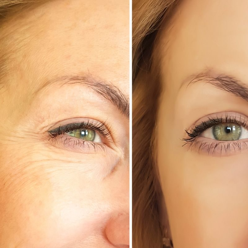 Wrinkles before and after botox