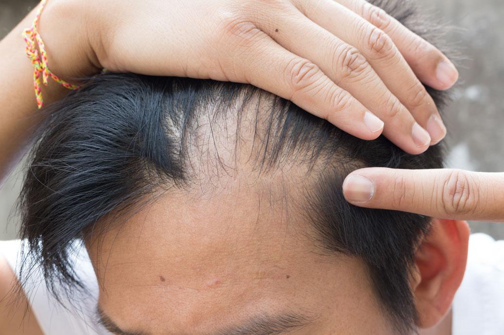 Man showing hair loss