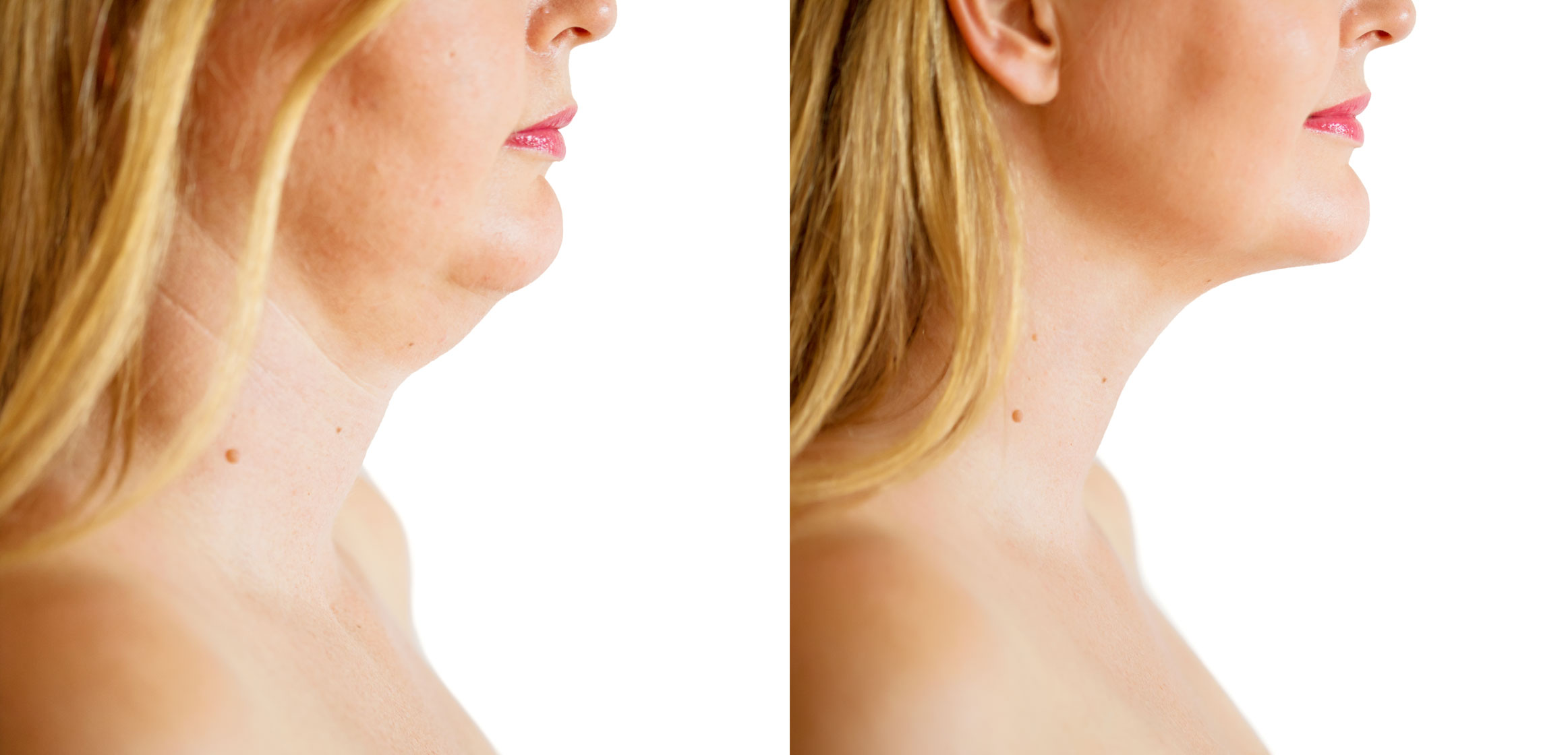 Woman double chin before and after chin sculpting