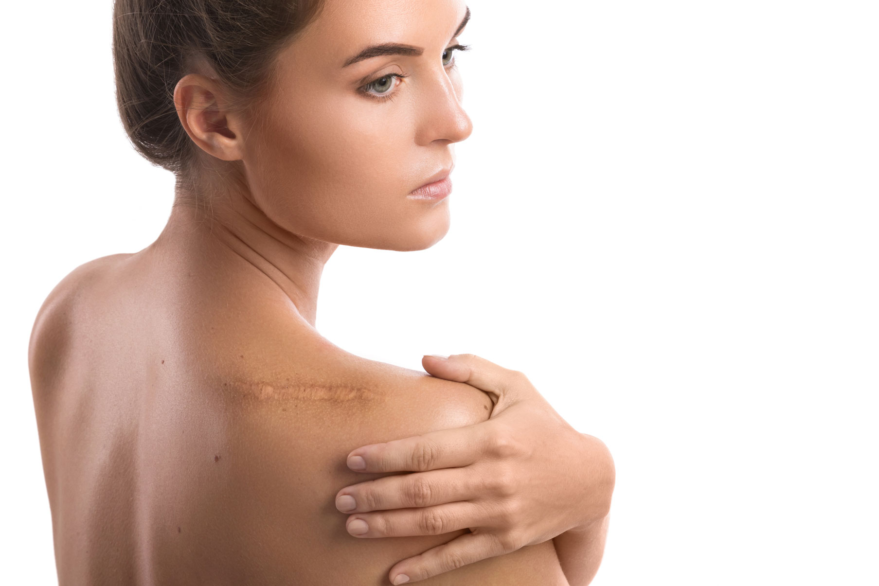 Woman with a scar on her shoulder. Scar revision