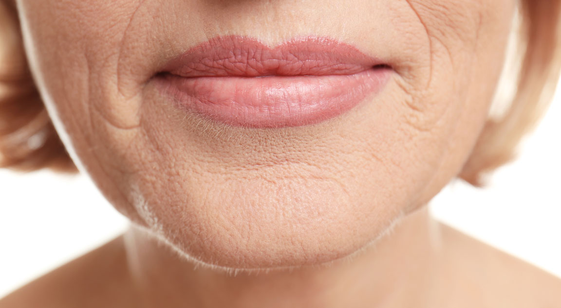 Elderly woman with spider wrinkles around lips
