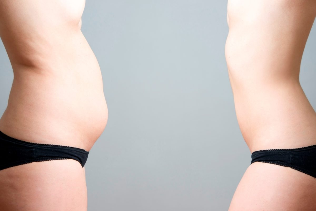 Woman belly before and after coolsculpting