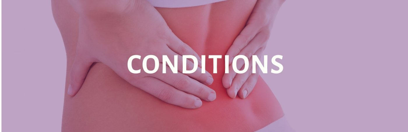 Conditions button