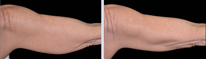 Mature woman's underarm before and after coolsculpting